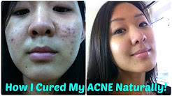 hqdefault - Natural Ways To Help Cure Acne