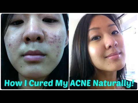 hqdefault - What Has Worked For Your Acne