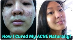hqdefault - Natural Cures For Acne That Work