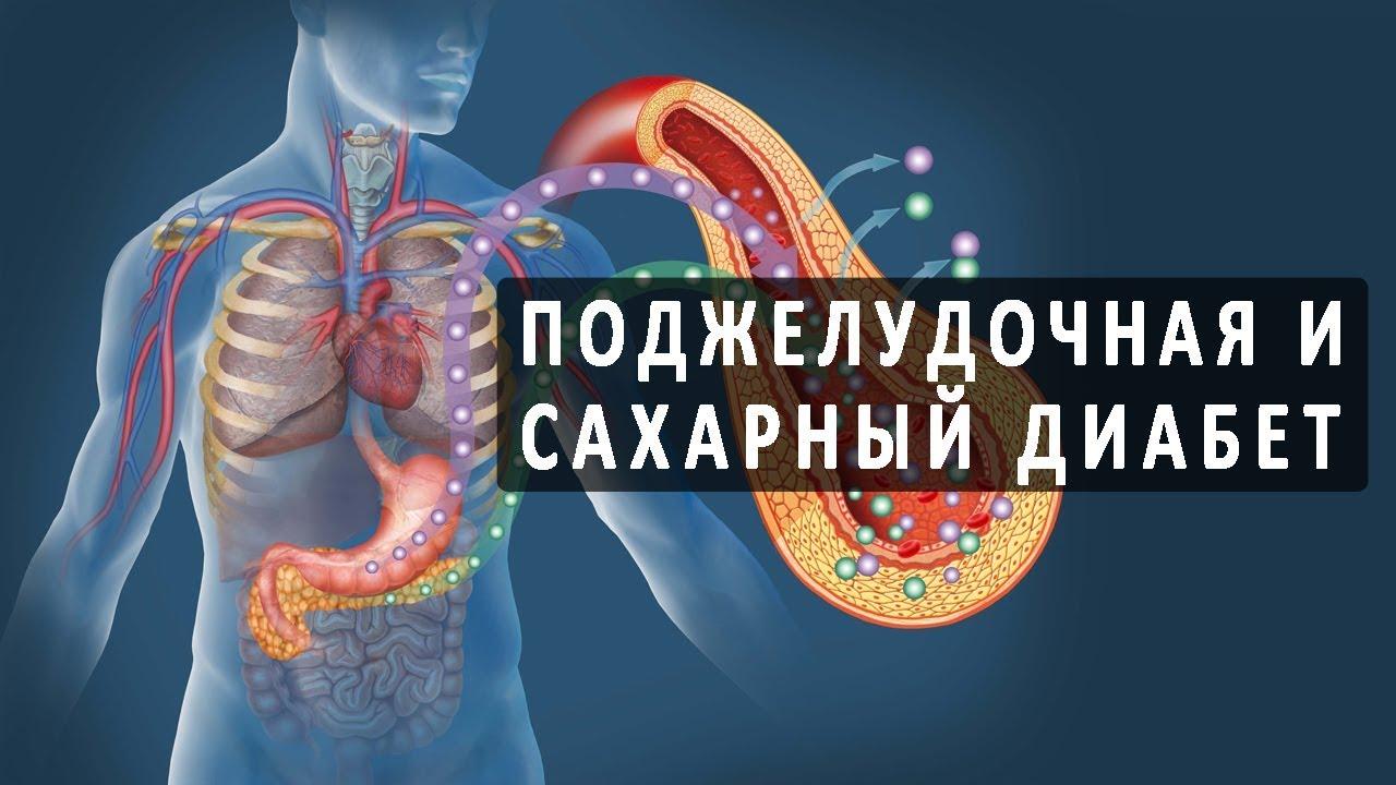 Может ли панкреатит вызывать сахарный диабет