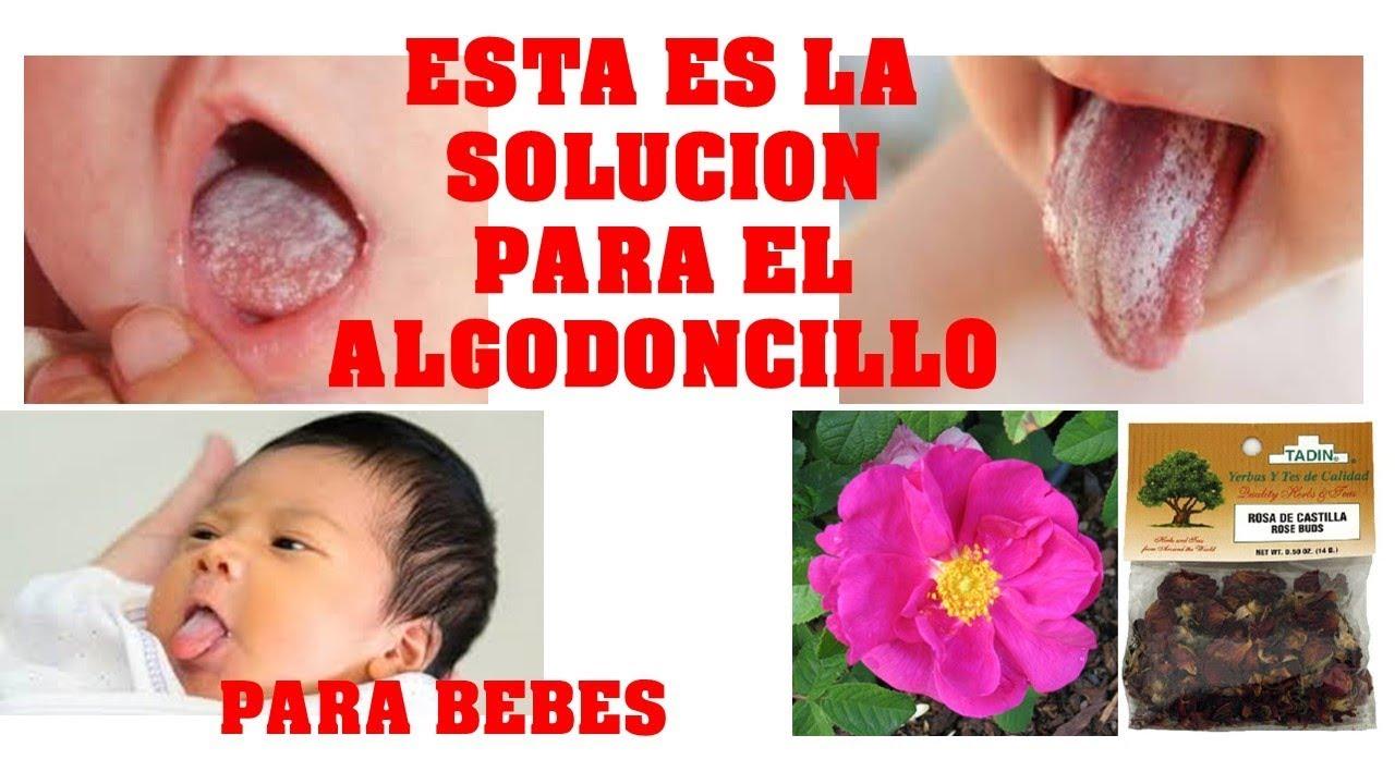 algodoncillo en la boca de los bebés