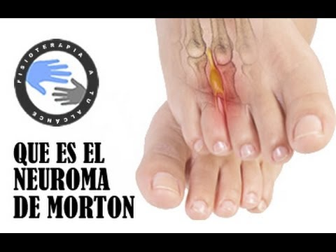 Dolor en la punta de un dedo del pie