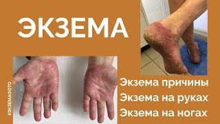 Фото Экзема   причины симптомы стадии фото