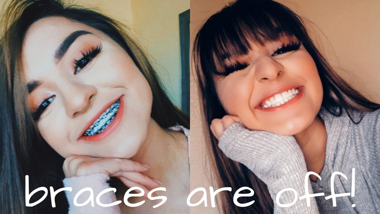 Getting My Braces Off Youtube