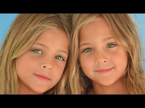 These Twins Were Named Most Beautiful In The World  Wait Till You See Them Today