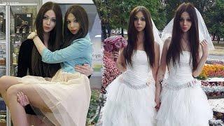 Husband & Wife Look Like Identical Female Twins
