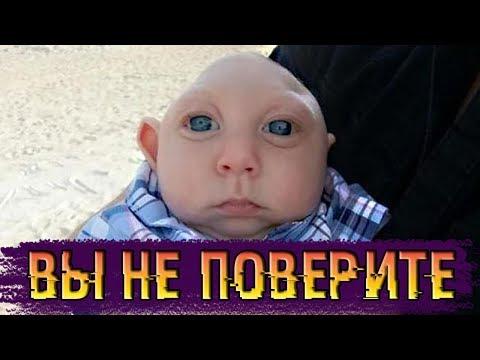 Помните мальчика, который родился без головного мозга? Вот как он живет теперь ...