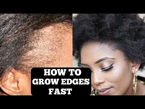 how-to-grow-your-thin/bald-edges-in-3-days-(guaranteed)