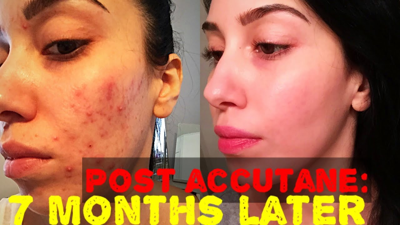 Accutane Journey | 7 MONTHS POST | Skin Update & LONG TERM