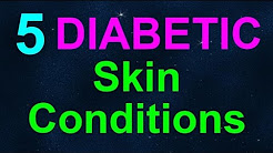 [INTERVIEW]  5 Diabetic Skin Conditions with Dr. Saini of MD Dermatology