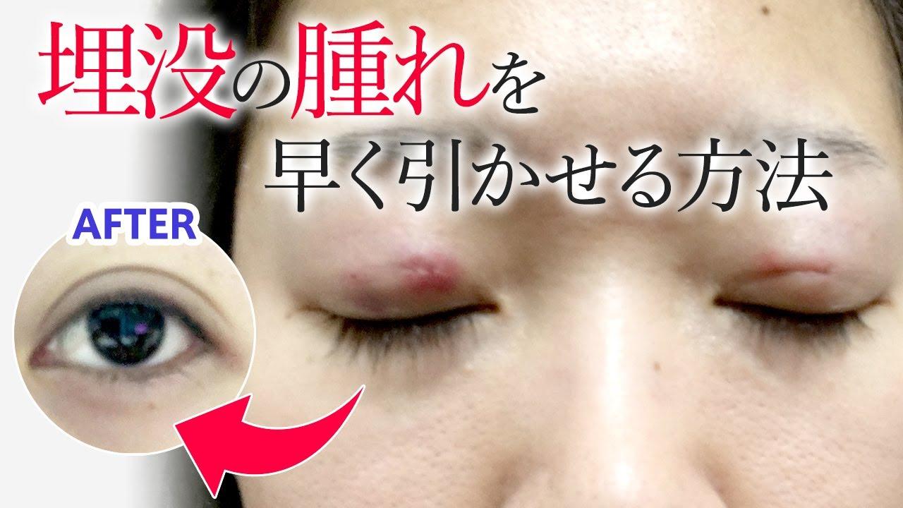 目 の 腫れ すぐ 治す