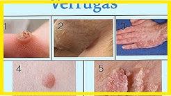 Top-Typen und Behandlungen für Warzen