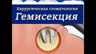 видео показания к гемисекции зуба