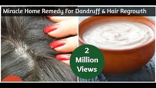 Miracle Home Remedy For Dandruff & Hair Regrowth | Sushmita