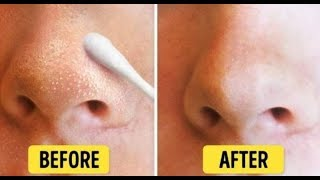 Get Rid Of Your Whiteheads Naturally On Your Face & Nose