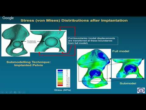 Orthopaedic Biomechanics: Implants and Biomaterials (Day - 5)