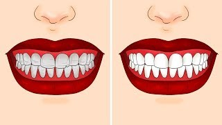 15 TIPS AND TRICKS FOR TEETH EVERYONE SHOULD KNOW