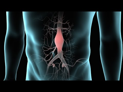 Abdominal Aortic Aneurysm (AAA Repair)