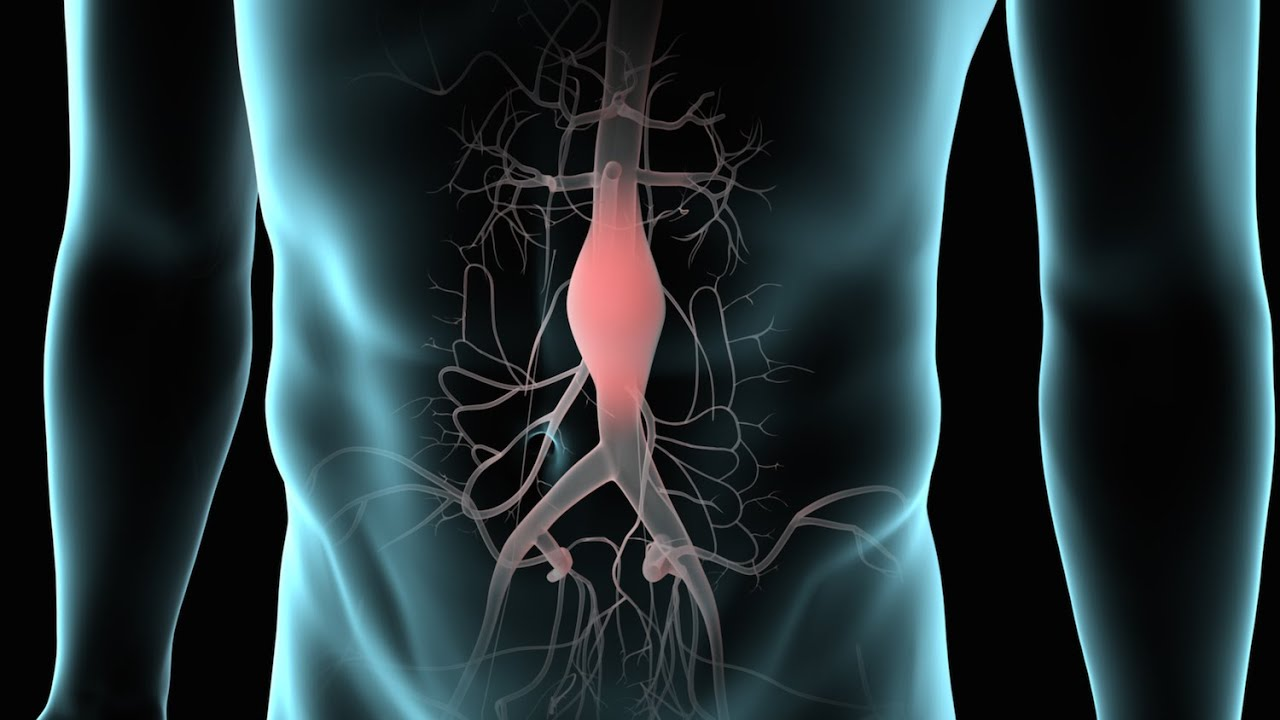 abdominal aortic aneurysm Abdominal aortic aneurysms (aaas) are aneurysms that occur in the part of the  aorta that passes through the abdomen they may occur at any age, but are most .