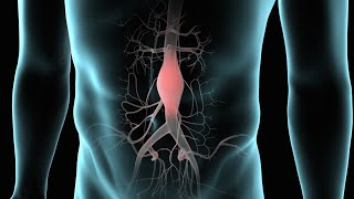 Endovascular Abdominal Aortic Aneurysm Repair (AAA Repair)