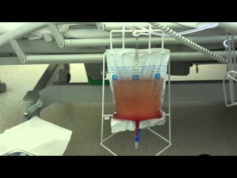 Emptying a Urine Catheter