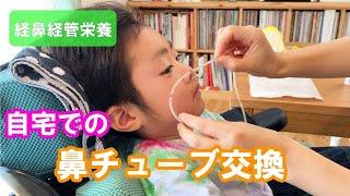 そうたろう君のインスタグラムはこちら →https://www.instagram.com/inoinoart/?hl=ja こんばんは! アンリーシュ のゆうかです。 アンリーシュでもよく登場する鼻チューブ、 ...