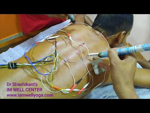 Acupuncture & Moxibustion for Backpain-Dr Shashikant