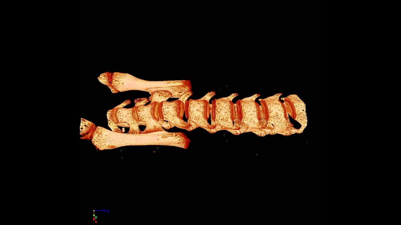 Mouse Spinal Column and Vertebrae - MicroCT (micro computed ...