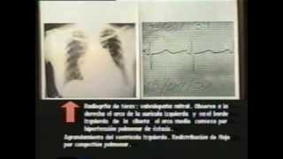 3.1. Semiología Médica de Lasala: El examen físico del aparato cardiovascular 2/3