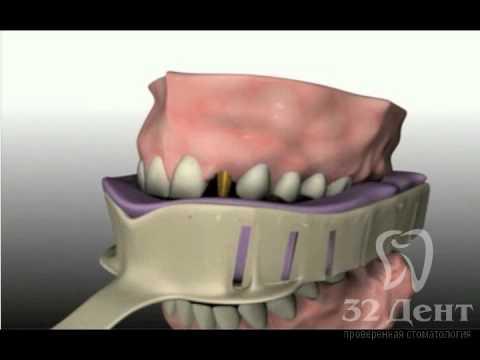 Имплантация с использованием формирователя десны и коррекцией прикуса