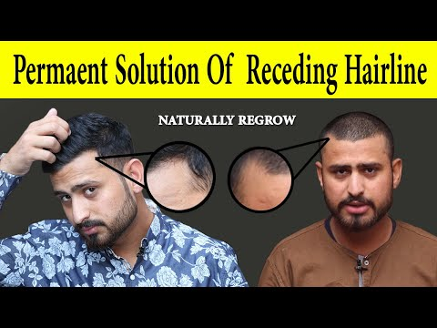 permanent-solution-of-receding-hairline-haircuts-naturally-at-home-|-receding-hairline-regrowth
