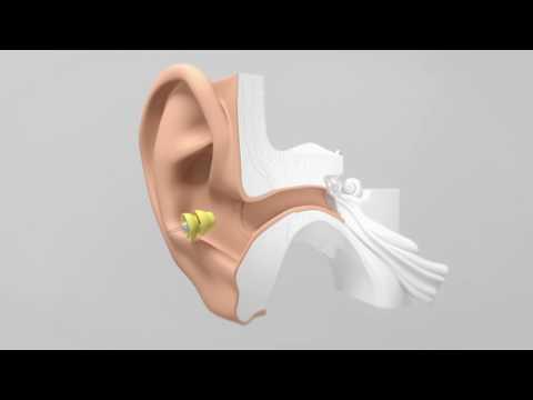 Lyric - la première aide auditive au monde 100% invisible