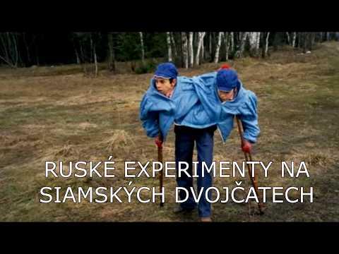Ruské experimenty na siamských dvojčatech / Flerr