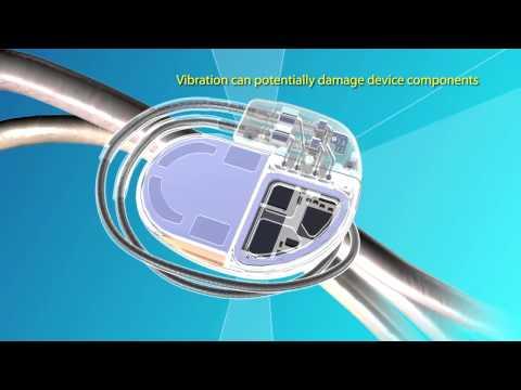 Medtronic Advisa™ DR MRI SureScan™ Pacemaker Video