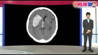 脳神経外科領域 読影の基礎01_はじめに、プレテスト