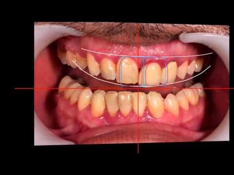 newsmile casablanca - hollywood smille-facetters dentaires-blanchiment définitif