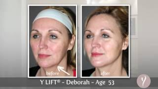 Y LIFT ® 2013 - Deborah | Instant, Non Surgical Facelift