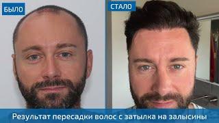 прекрасный результат пересадки волос мужчине с затылка на залысины - 4000 графтов - Клиника HLC