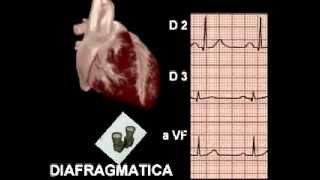 Electrocardiograma Básico