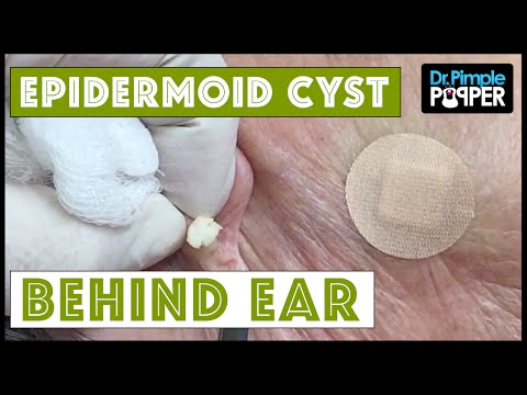 Greatest Blackhead and Whitehead Removal Techniques; Cysts ...