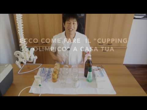 Download Cupping o coppetazione