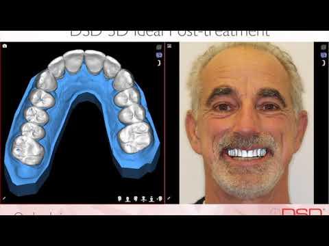 The Silverstrom Group | Best Dentist Livingston NJ | Top