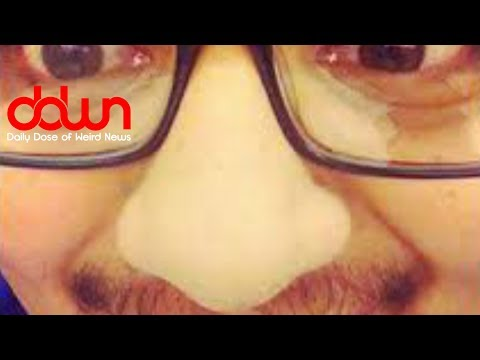 Selfies give you a big nose! * And MORE in this DAILY DOSE OF WEIRD NEWS! #DDWN