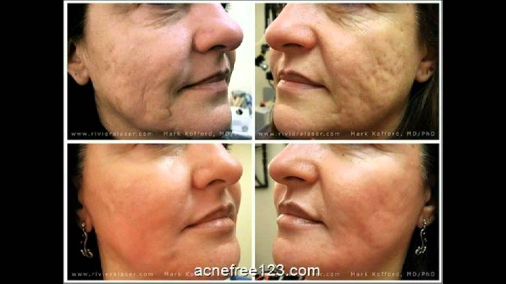 How To Get Rid Of Acne Pimples Scars Marks Fast Overnight