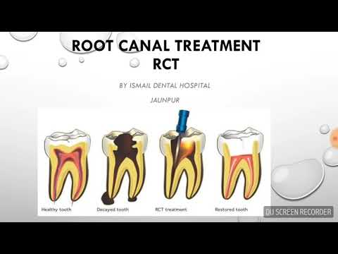 RCT in HINDI - What is Root Canal Treatment in Hindi