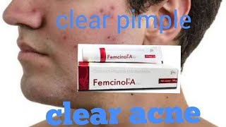 Best cream for acne and pimple