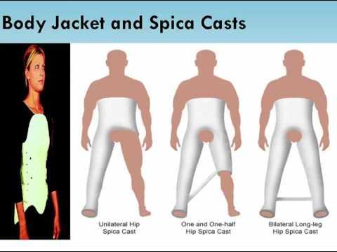 Nursing School Fractures-Traction-Casts-Amputations