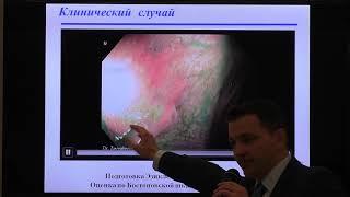 17 Завьялов ДВ Эзиклен   новый малообъемный препарат  Эволюция в подготовке кишечника