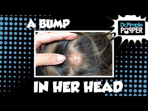 hqdefault - Pimples On My Head Hurt