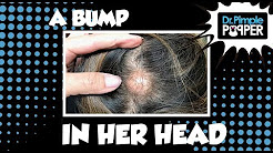 hqdefault - Recurring Pimple On Scalp